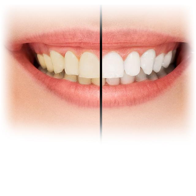 tanden bleken brielle
